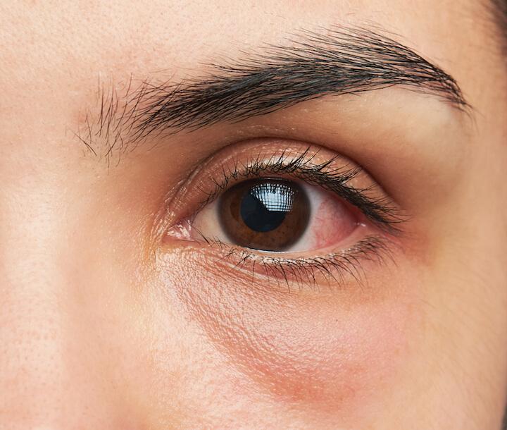 Geroetetes Auge |© panthermedia.net / dimarik