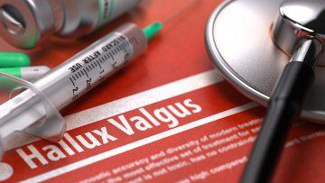 Diagnose: Hallux valgus – Behandlung, Operation und die richtigen Schuhe