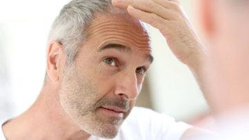 Glatze – muss das wirklich sein?