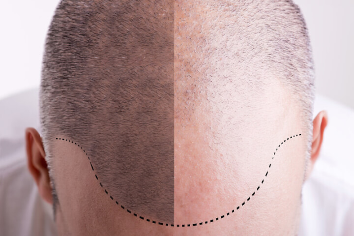 Haartransplantatio | © panthermedia.net /ruigsantos